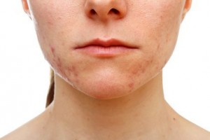 getting-rid-of-acne-scars-fast