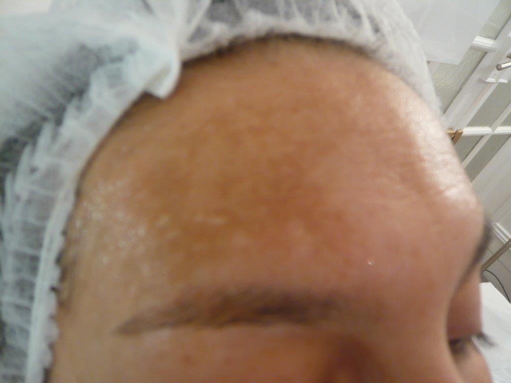 hyperpigmentation après laser